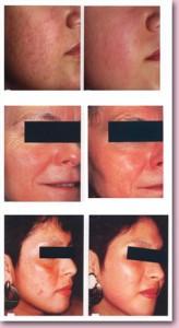 пилинг лица до и после, омолаживание кожи